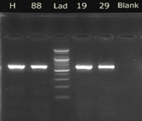 The product of amplification of the ITS region M. anisopliae isolates passed on 1% agarose gel for 90 min after dyeing with ethidium.